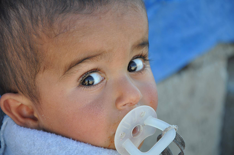 A wide-eyed child. Displaced by violence, but receiving help through IHAO and Preemptive Love Coalition.