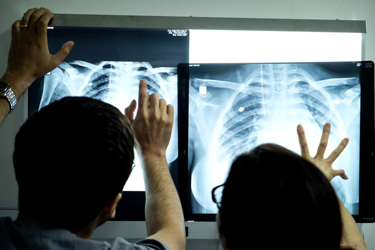 photo of doctors studying Hatem's xray