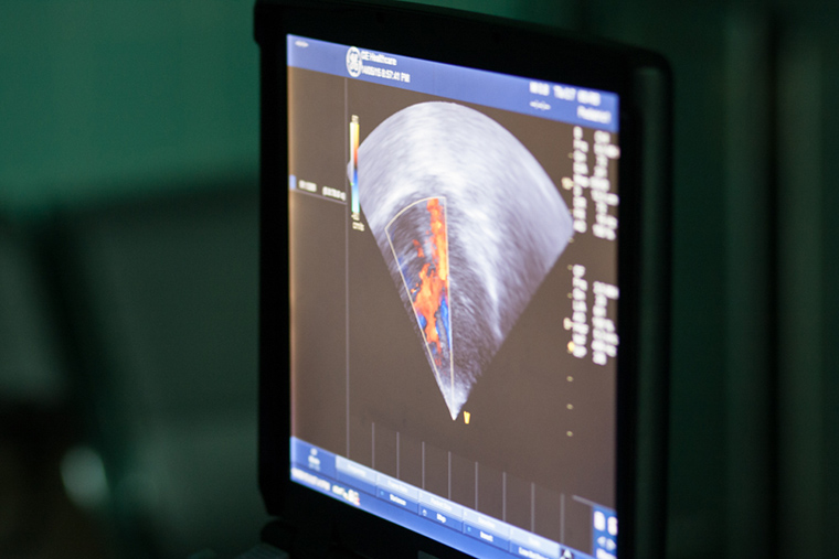 An ultrasound of a patient's heart flashes on a monitor in full colour.