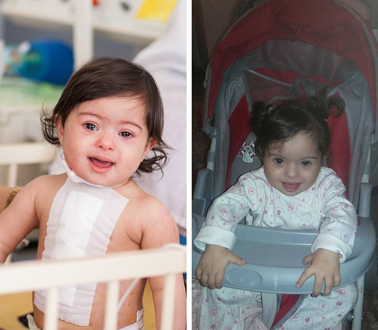 Side-by-side photos of little Malak, immediate after her lifesaving heart surgery in Libya and after she healed up and went home.