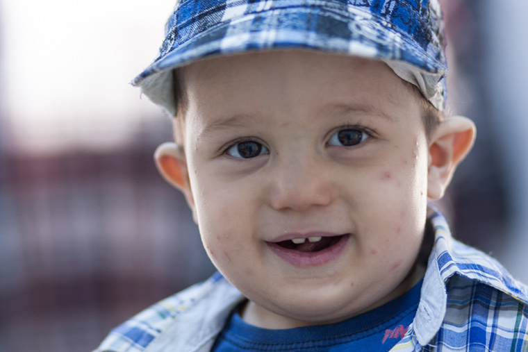 Young Khalid waits for surgery, his little face smiles wide, topped with a ball cap and dotted with mosquito bites.